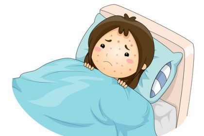 Kid Girl Chicken Pox Illustration